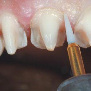 NTI Boren en Frezen Tandheelkunde